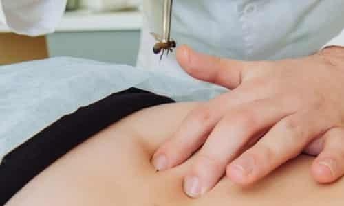 Апитерапия при грыже позвоночника: причины грыжи, принцип воздействия, эффективность метода, техника проведения, противопоказания, отзывы