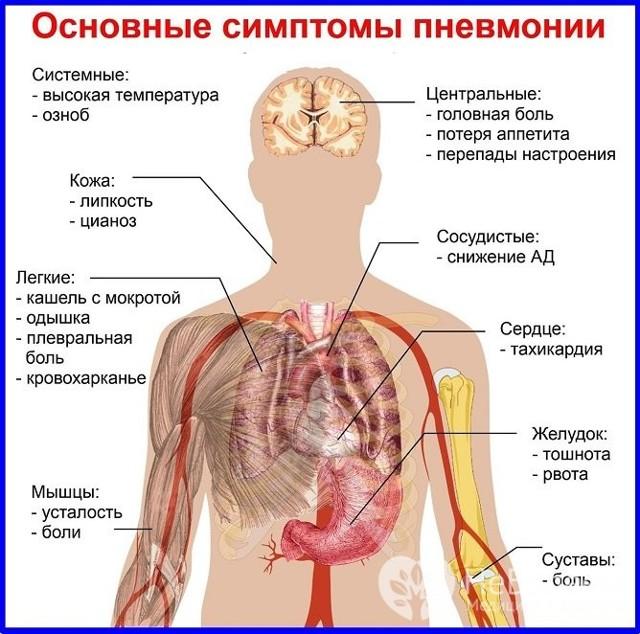 Атипичная пневмония: симптомы у взрослых и детей. Острый респираторный синдром