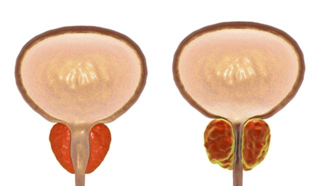 Диета при аденоме предстательной железы (аденоме простаты)