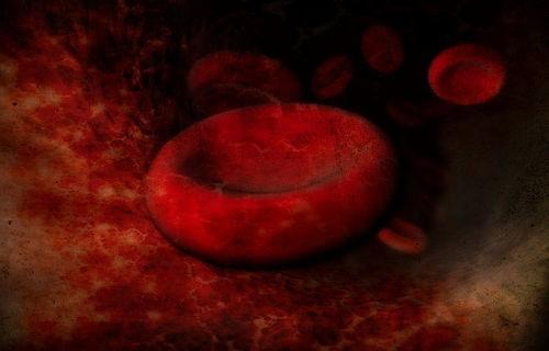 Анемия: симптомы, лечение и причины гемолитической, апластической, гипохромной и других видов анемии (малокровия)