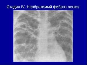 Фиброз легких: как лечить, что такое фиброзные изменения в легких, продолжительность жизни