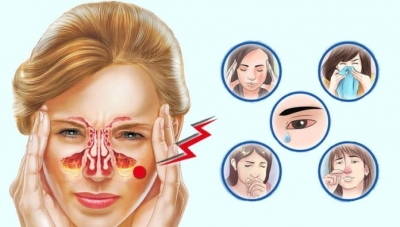 Аллергический, острый, хронический, вазомоторный ринит: лечение и симптомы у взрослых