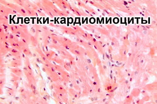 7e1a1d9d9b45bc576ffae376eb4515bd - Simptomi i uzroci blagih promjena miokarda