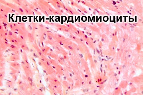 7e1a1d9d9b45bc576ffae376eb4515bd - Mild myocardial changes symptoms and causes