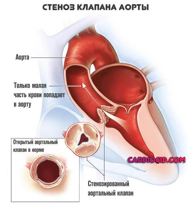 Аортальный стеноз (стеноз аортального клапана)