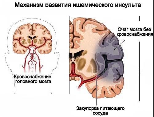 Диета при инсульте, меню питания после ишемического инсульта головного мозга