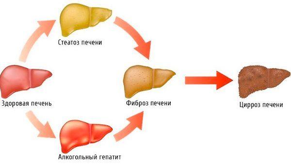 В России создано новое лекарство от цирроза печени