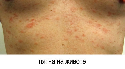 Эффективное лечение красного плоского лишая. Диета при лишае отрубевидном