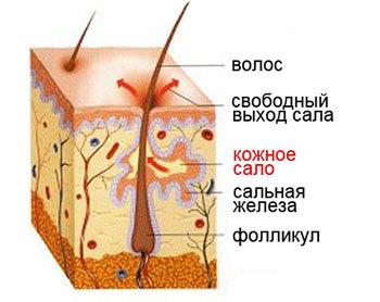 Акне (угревая сыпь, угри на теле). Лечение, причины, как избавиться от угревой болезни
