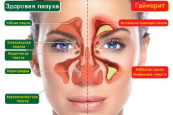 Симптомы и лечение гайморита, фронтита и других синуситов