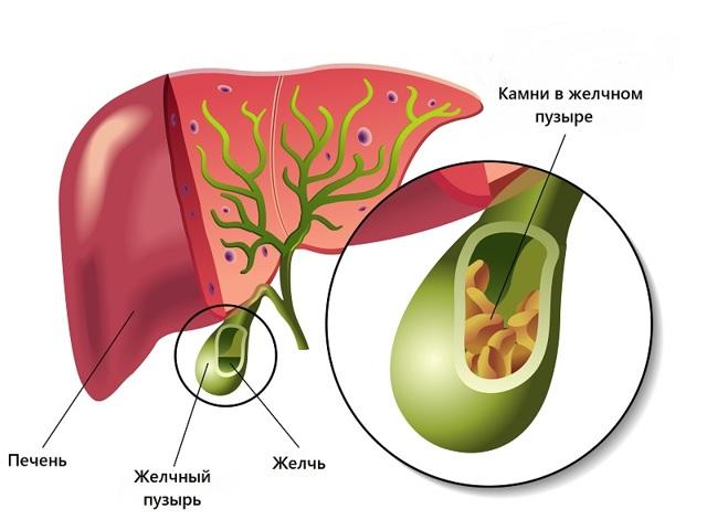 Диета при застое желчи в желчном пузыре. Перечень желчегонных продуктов питания